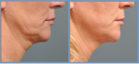 ULTRASOUND FACIAL (HIFU - Equivalent To ULTHERAPY) for Longer-Lasting Skin Lifting & TIghtening! Noninvasive and natural-looking facelift! For more rejuvenated you!