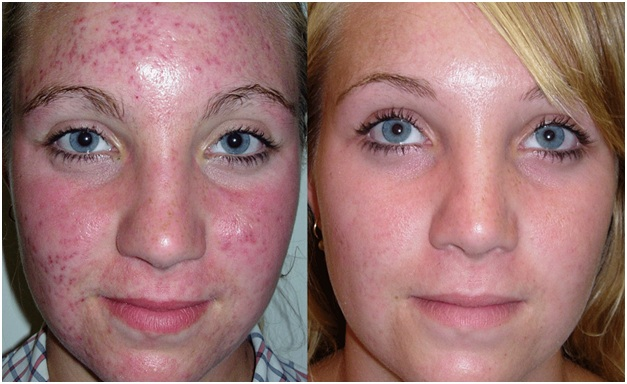 Acne & Acne Scar / Scarring Treatments And Facials In San
