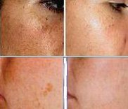 IPL PHOTO REJUVENATION TREATMENT (PHOTOFACIAL) - Good for Sun Damaged Skin, Acne Skin & Red Skin.