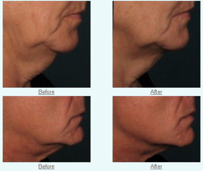 Non-Invasive & Non-Surgical Ultrasound Face-Lift & Skin Tightening
